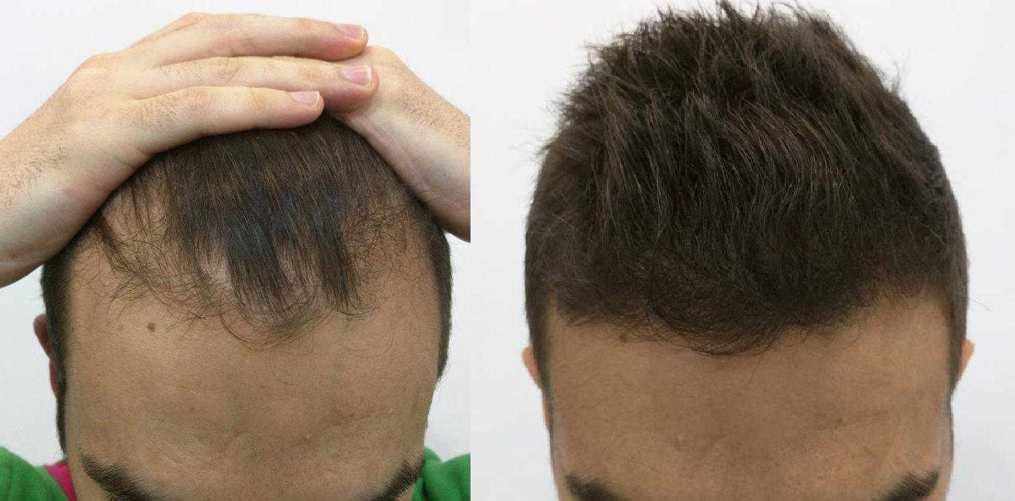[Imagen: tratamiento-capilar-mesoterapia-ledhair-20.jpg]