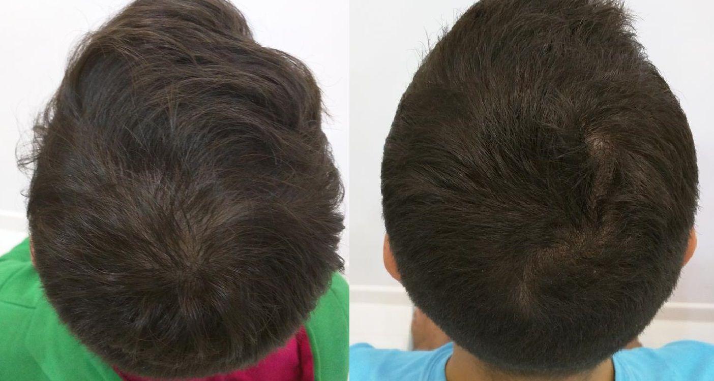 [Imagen: tratamiento-capilar-mesoterapia-ledhair-22.jpg]