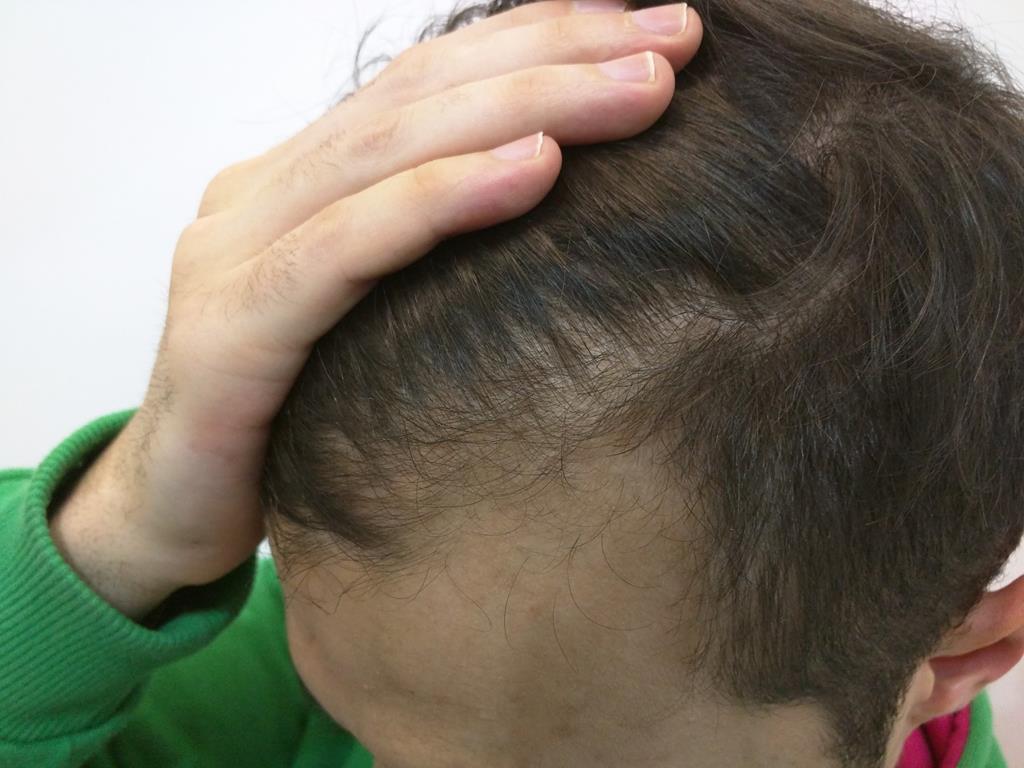 [Imagen: tratamiento-capilar-mesoterapia-ledhair-3.jpg]
