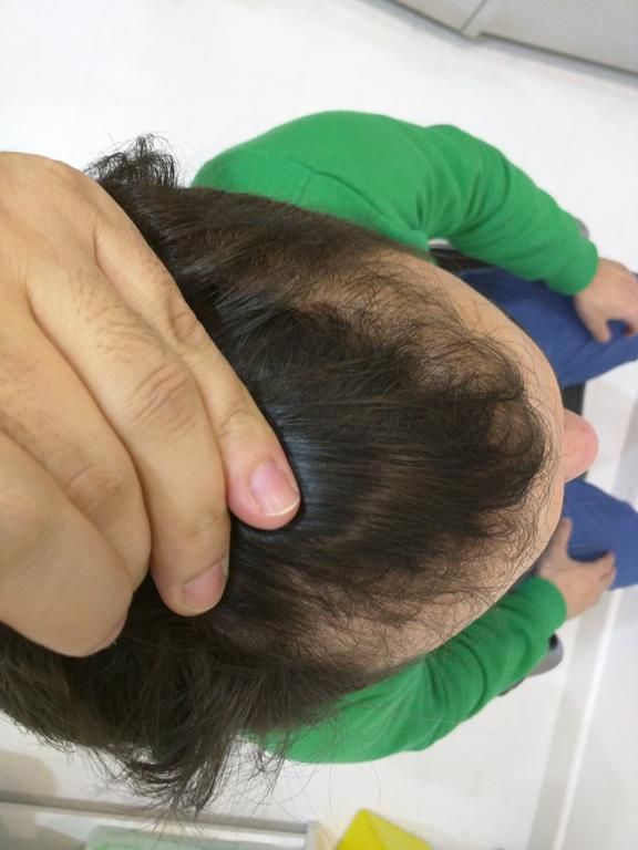 [Imagen: tratamiento-capilar-mesoterapia-ledhair-5.jpg]