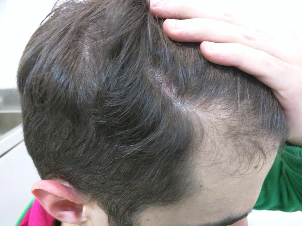 [Imagen: tratamiento-capilar-mesoterapia-ledhair-6.jpg]