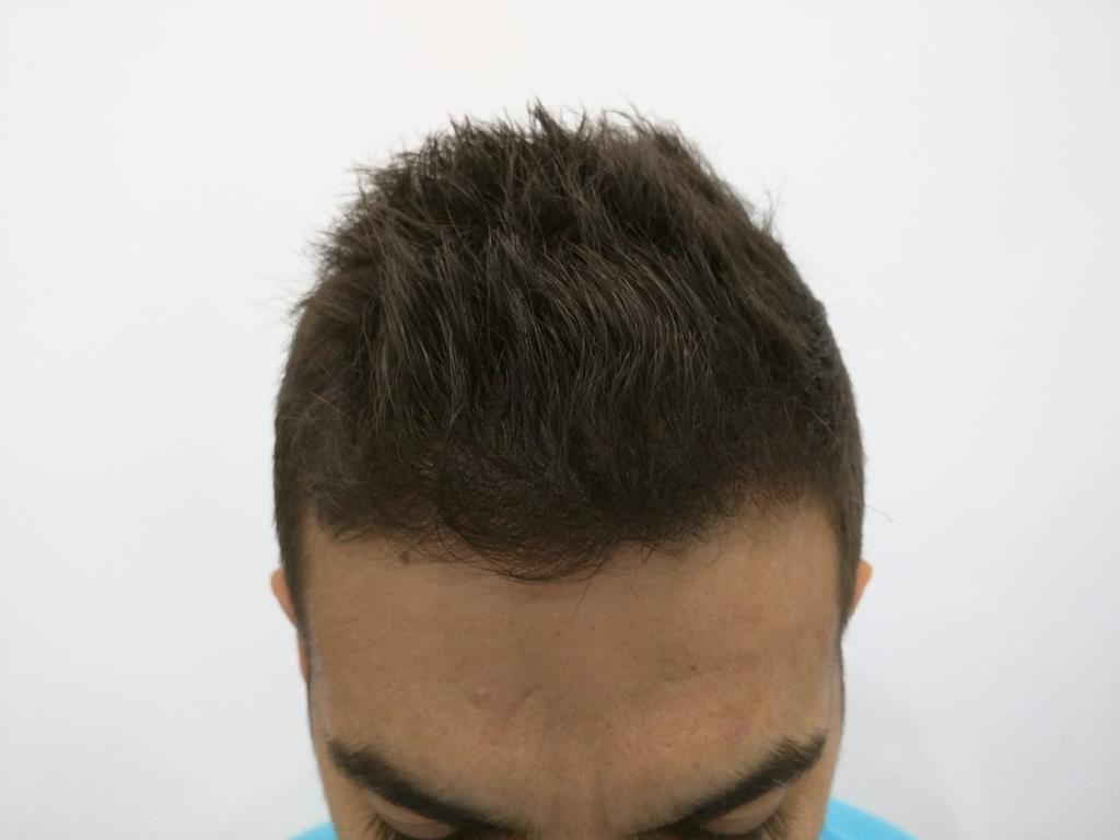 [Imagen: tratamiento-capilar-mesoterapia-ledhair-7.jpg]