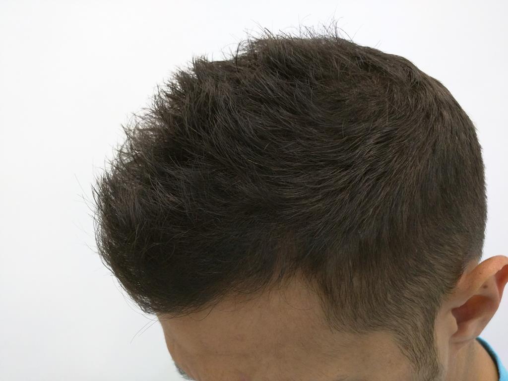 [Imagen: tratamiento-capilar-mesoterapia-ledhair-8.jpg]