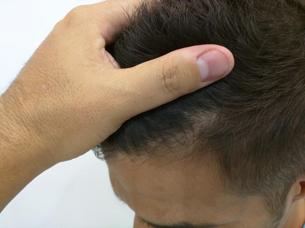 [Imagen: tratamiento-capilar-mesoterapia-ledhair-9.jpg]