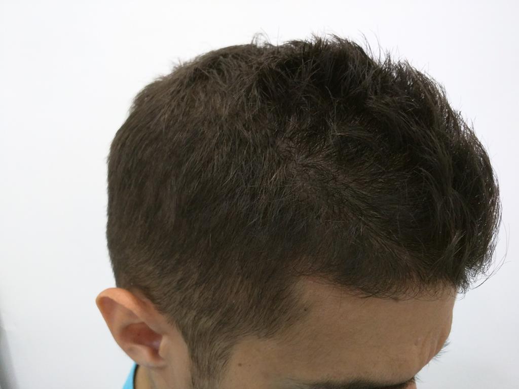 [Imagen: tratamiento-capilar-mesoterapia-ledhair.jpg]