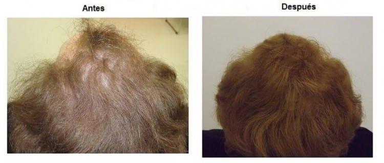 [Imagen: tratamiento-capilar-mujer-centro-capilar-dr-pelo-09.jpg]