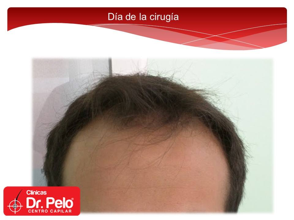 [Imagen: Injerto-capilar-tecnica-fue-dr-pelo-dr-a...nior-1.jpg]