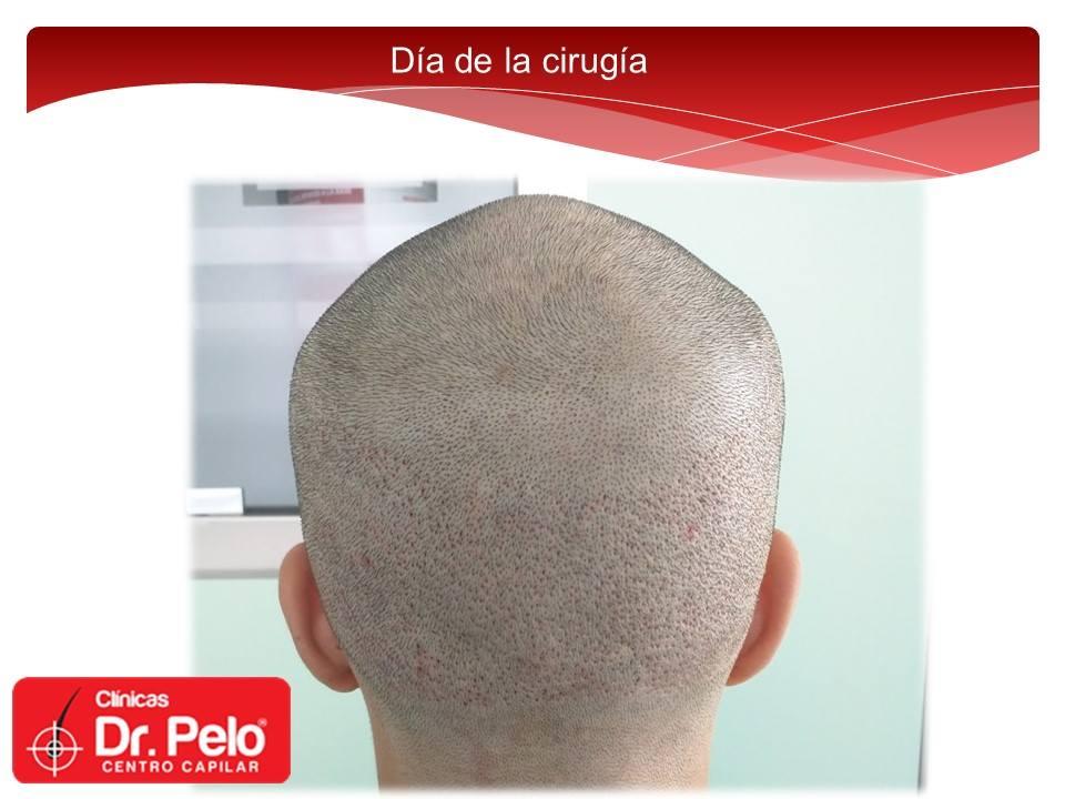 [Imagen: Injerto-capilar-tecnica-fue-dr-pelo-dr-a...ior-10.jpg]