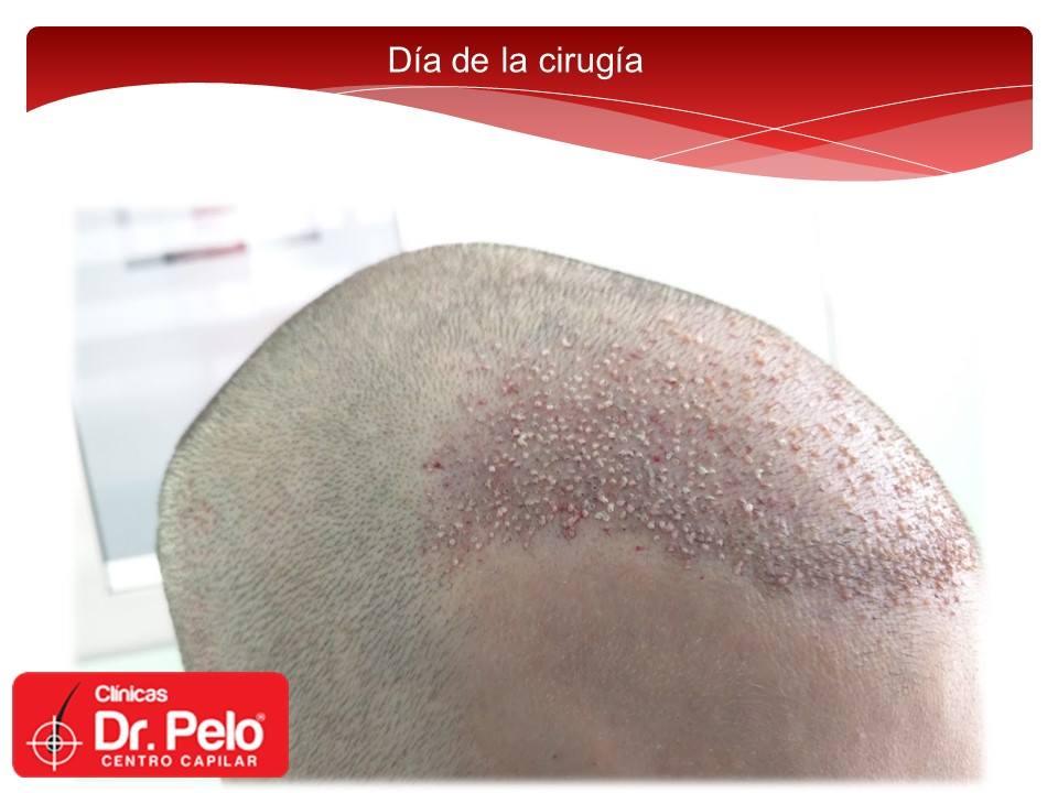 [Imagen: Injerto-capilar-tecnica-fue-dr-pelo-dr-a...ior-11.jpg]