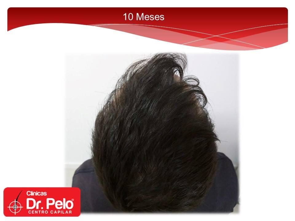 [Imagen: Injerto-capilar-tecnica-fue-dr-pelo-dr-a...ior-17.jpg]