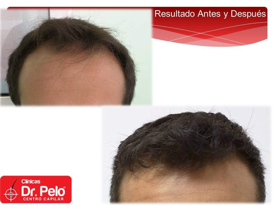 [Imagen: Injerto-capilar-tecnica-fue-dr-pelo-dr-a...ior-19.jpg]