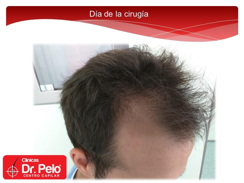 [Imagen: Injerto-capilar-tecnica-fue-dr-pelo-dr-a...nior-2.jpg]