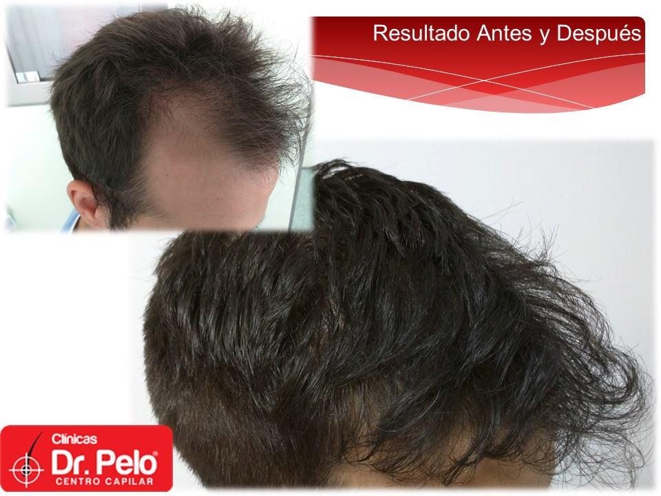 [Imagen: Injerto-capilar-tecnica-fue-dr-pelo-dr-a...ior-21.jpg]