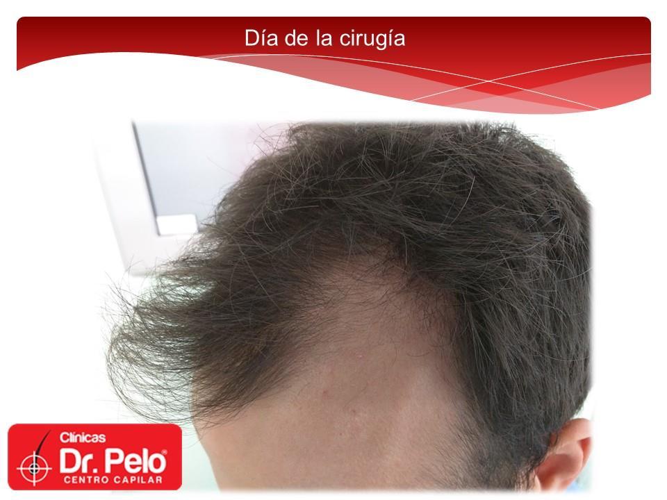 [Imagen: Injerto-capilar-tecnica-fue-dr-pelo-dr-a...nior-3.jpg]