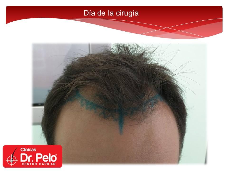 [Imagen: Injerto-capilar-tecnica-fue-dr-pelo-dr-a...nior-4.jpg]