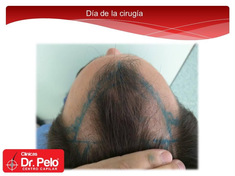 [Imagen: Injerto-capilar-tecnica-fue-dr-pelo-dr-a...nior-7.jpg]