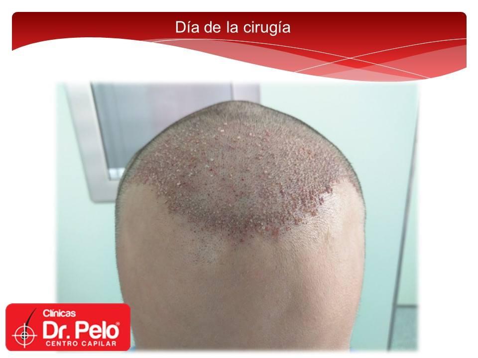 [Imagen: Injerto-capilar-tecnica-fue-dr-pelo-dr-a...nior-8.jpg]