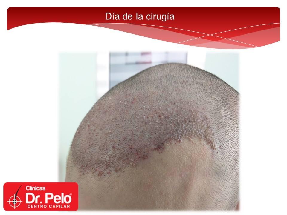 [Imagen: Injerto-capilar-tecnica-fue-dr-pelo-dr-a...nior-9.jpg]