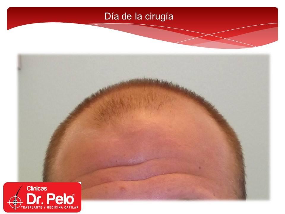 [Imagen: excelente-injerto-capilar-tenica-fue-cli...nior-1.jpg]