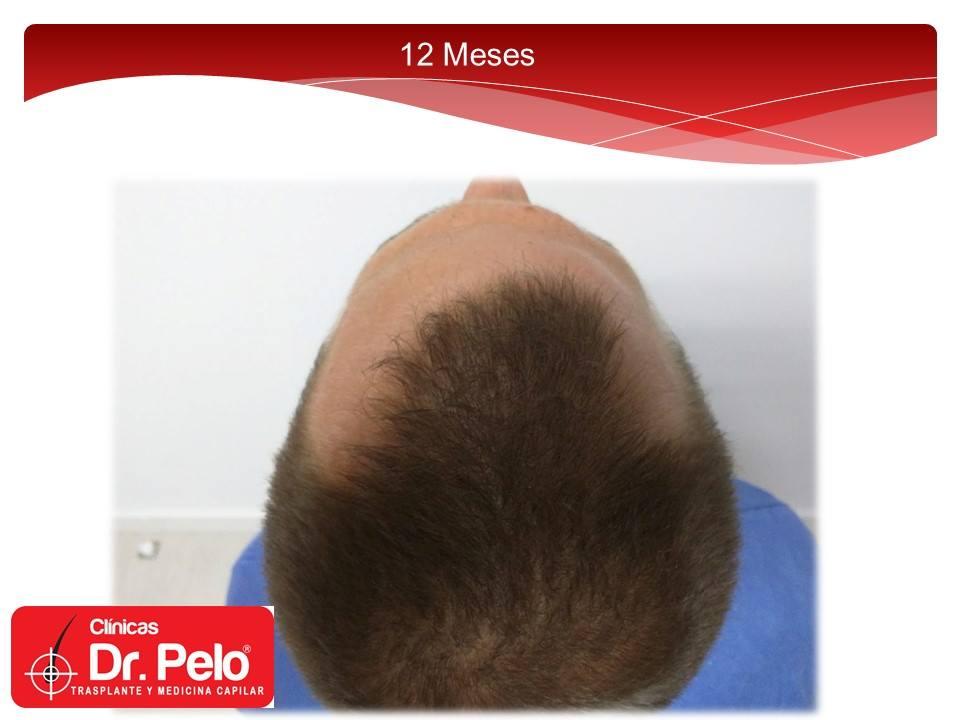 [Imagen: excelente-injerto-capilar-tenica-fue-cli...ior-12.jpg]