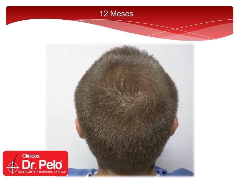 [Imagen: excelente-injerto-capilar-tenica-fue-cli...ior-13.jpg]