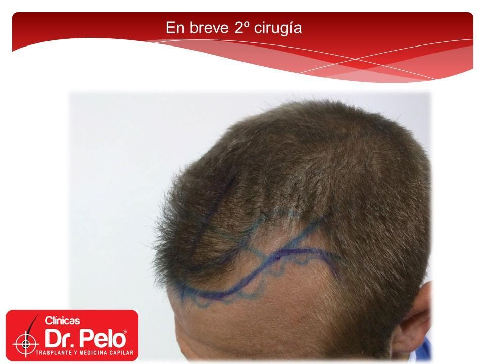 [Imagen: excelente-injerto-capilar-tenica-fue-cli...ior-16.jpg]