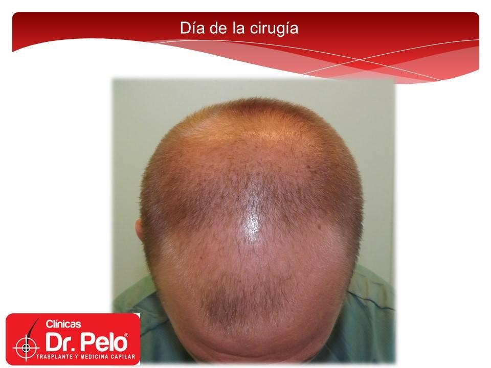 [Imagen: excelente-injerto-capilar-tenica-fue-cli...nior-2.jpg]