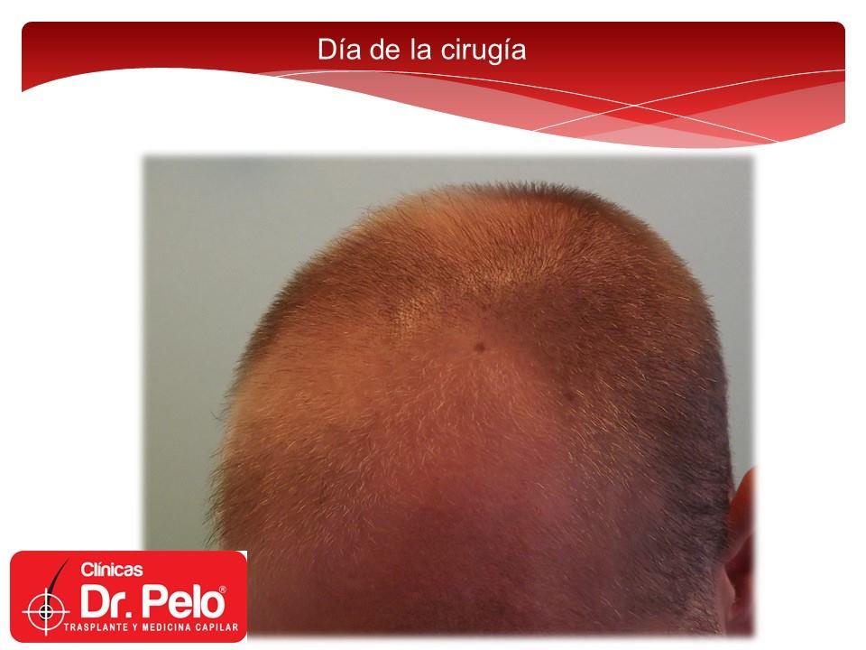 [Imagen: excelente-injerto-capilar-tenica-fue-cli...nior-3.jpg]
