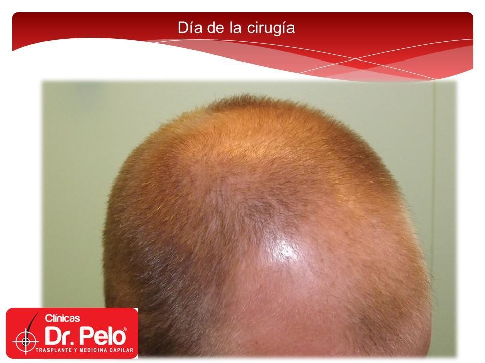 [Imagen: excelente-injerto-capilar-tenica-fue-cli...nior-4.jpg]