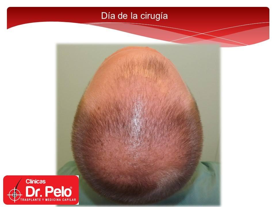 [Imagen: excelente-injerto-capilar-tenica-fue-cli...nior-5.jpg]