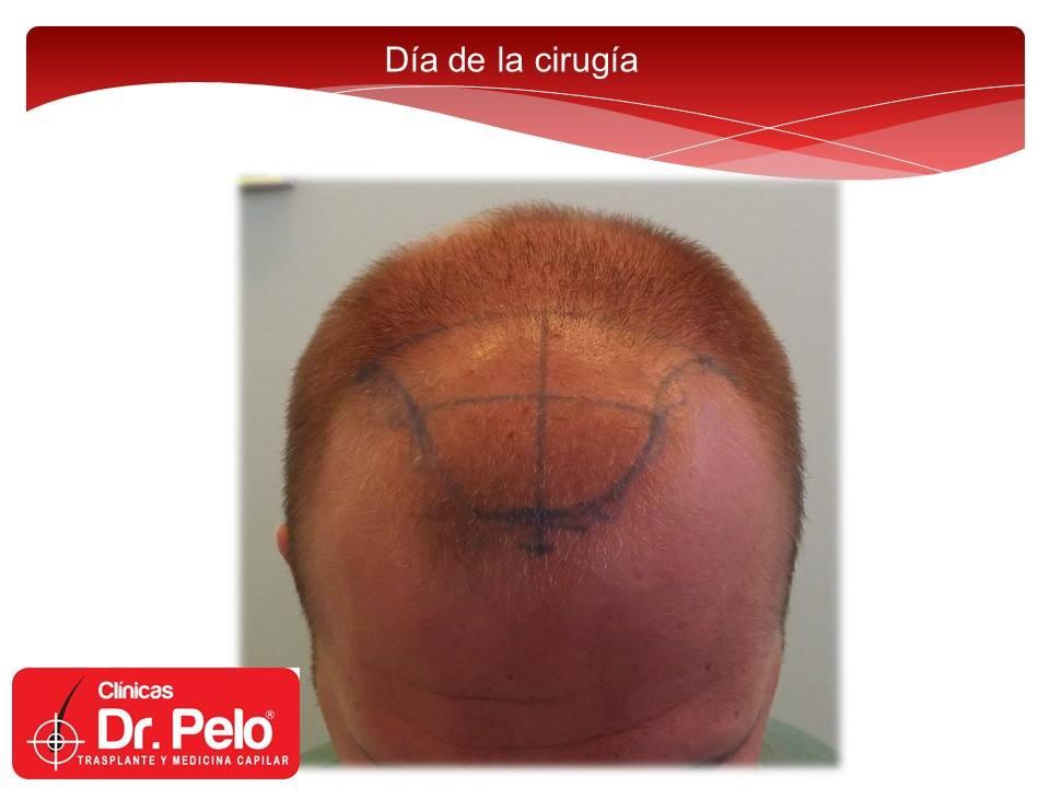 [Imagen: excelente-injerto-capilar-tenica-fue-cli...nior-6.jpg]
