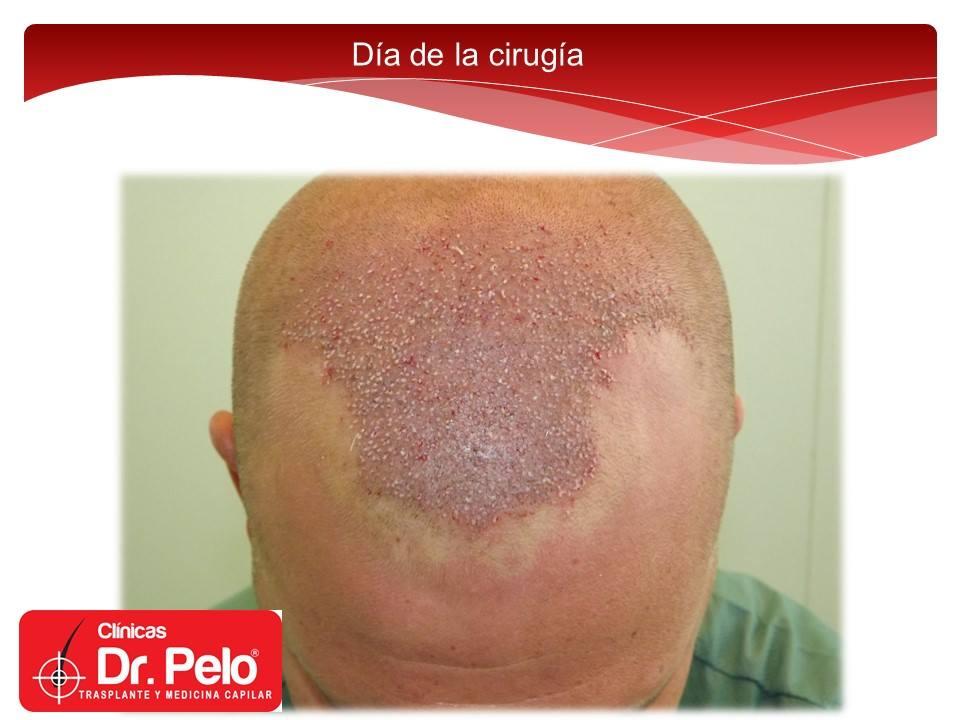 [Imagen: excelente-injerto-capilar-tenica-fue-cli...nior-7.jpg]