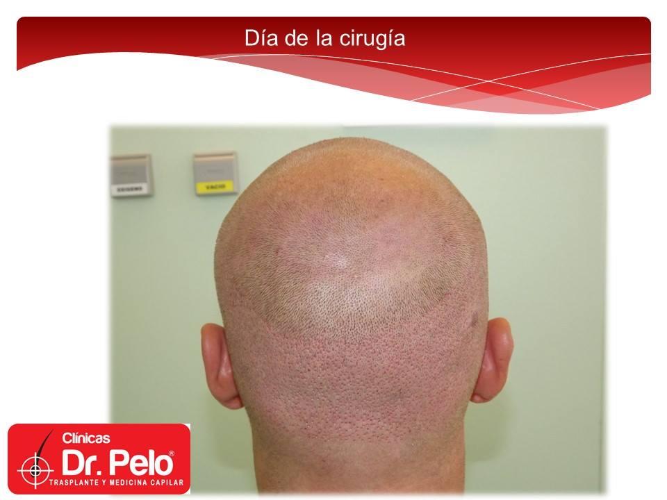 [Imagen: excelente-injerto-capilar-tenica-fue-cli...nior-8.jpg]