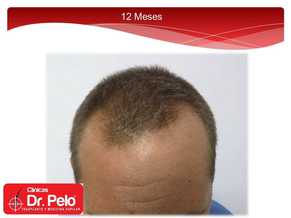 [Imagen: excelente-injerto-capilar-tenica-fue-cli...nior-9.jpg]