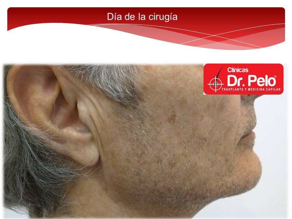 [Imagen: injerto-capilar-barba-clinicas-dr-pelo-d...arba-1.jpg]