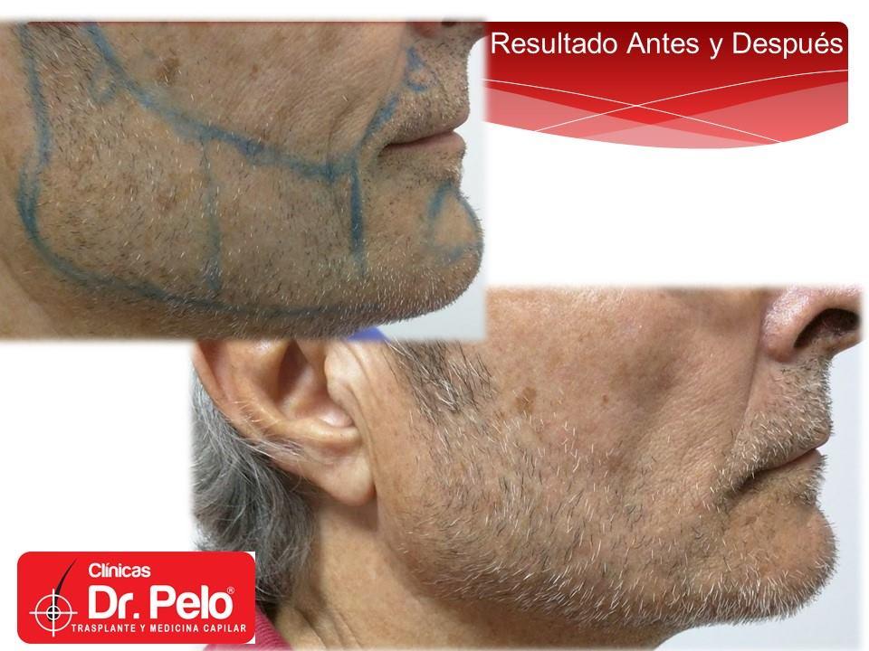 [Imagen: injerto-capilar-barba-clinicas-dr-pelo-d...rba-10.jpg]