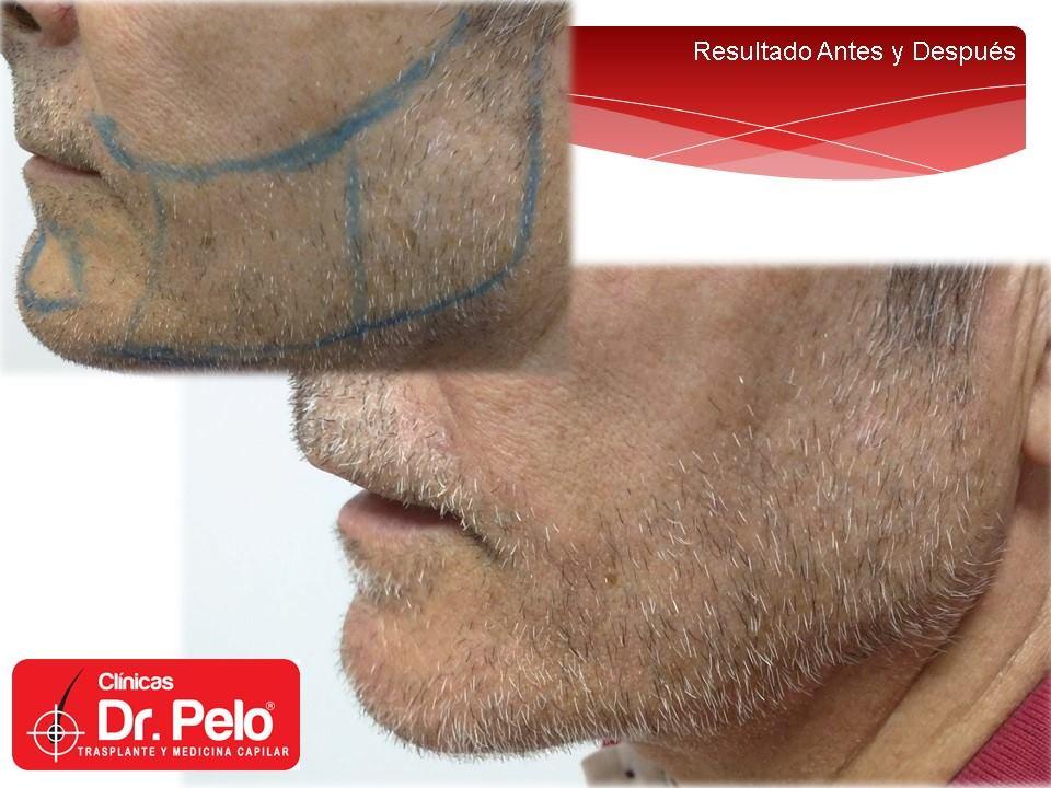 [Imagen: injerto-capilar-barba-clinicas-dr-pelo-d...rba-11.jpg]