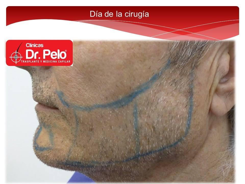 [Imagen: injerto-capilar-barba-clinicas-dr-pelo-d...arba-3.jpg]