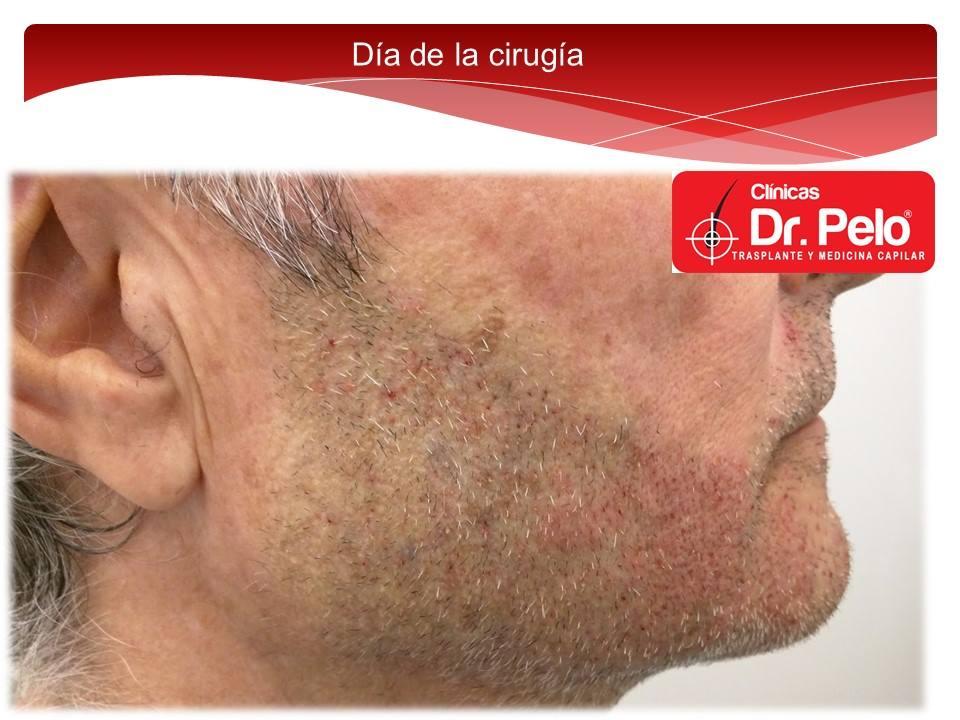 [Imagen: injerto-capilar-barba-clinicas-dr-pelo-d...arba-6.jpg]