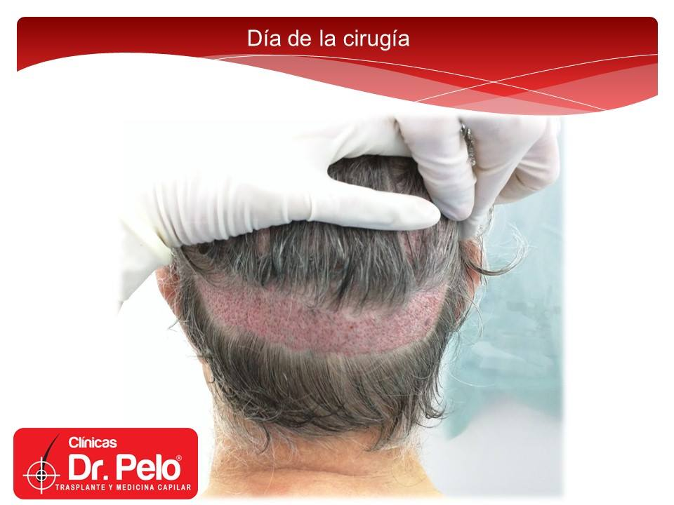 [Imagen: injerto-capilar-barba-clinicas-dr-pelo-d...arba-7.jpg]