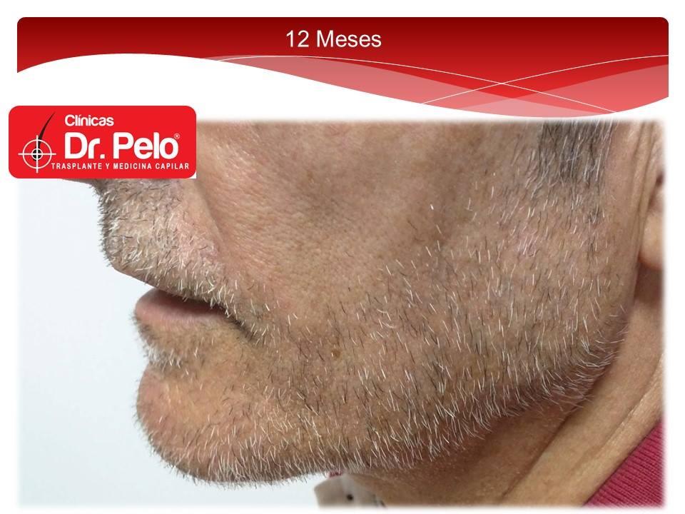 [Imagen: injerto-capilar-barba-clinicas-dr-pelo-d...arba-8.jpg]