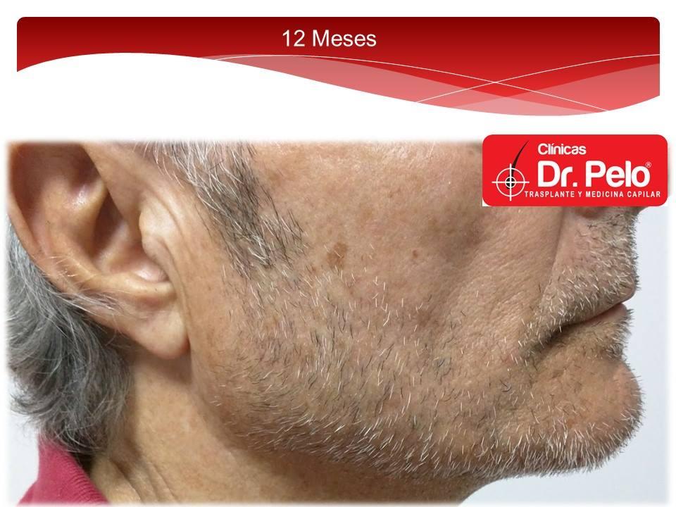 [Imagen: injerto-capilar-barba-clinicas-dr-pelo-d...arba-9.jpg]