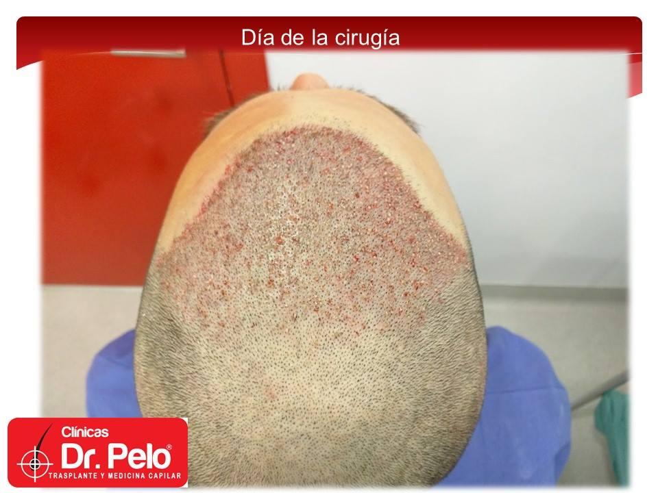 [Imagen: injerto-capilar-fue-10-2.jpg]