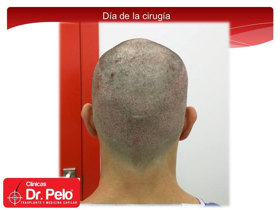 [Imagen: injerto-capilar-fue-11-2.jpg]