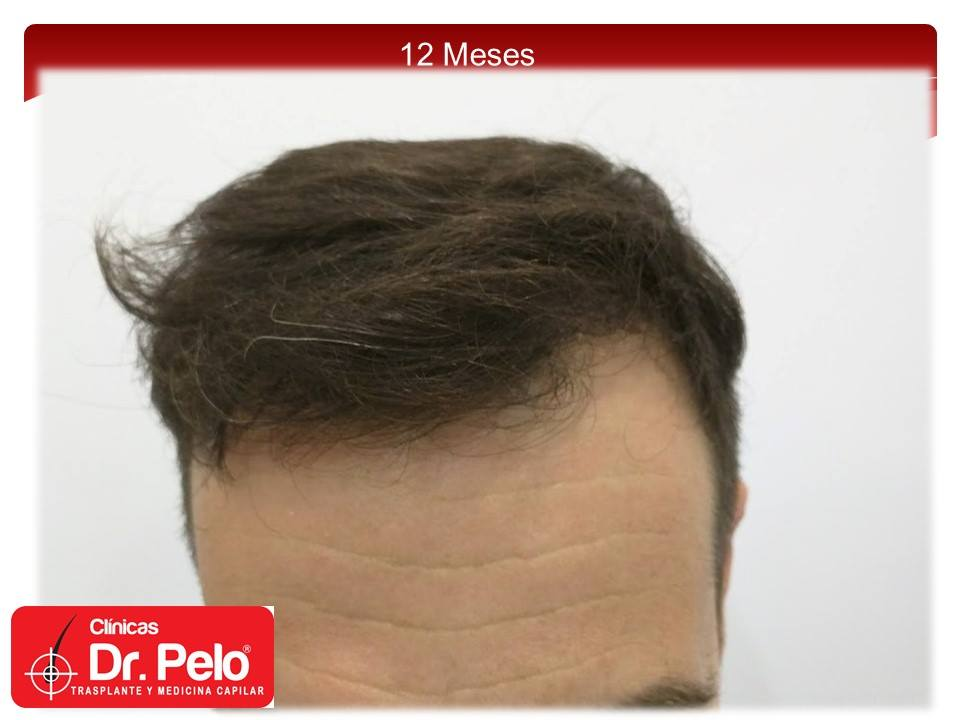 [Imagen: injerto-capilar-fue-12-1.jpg]