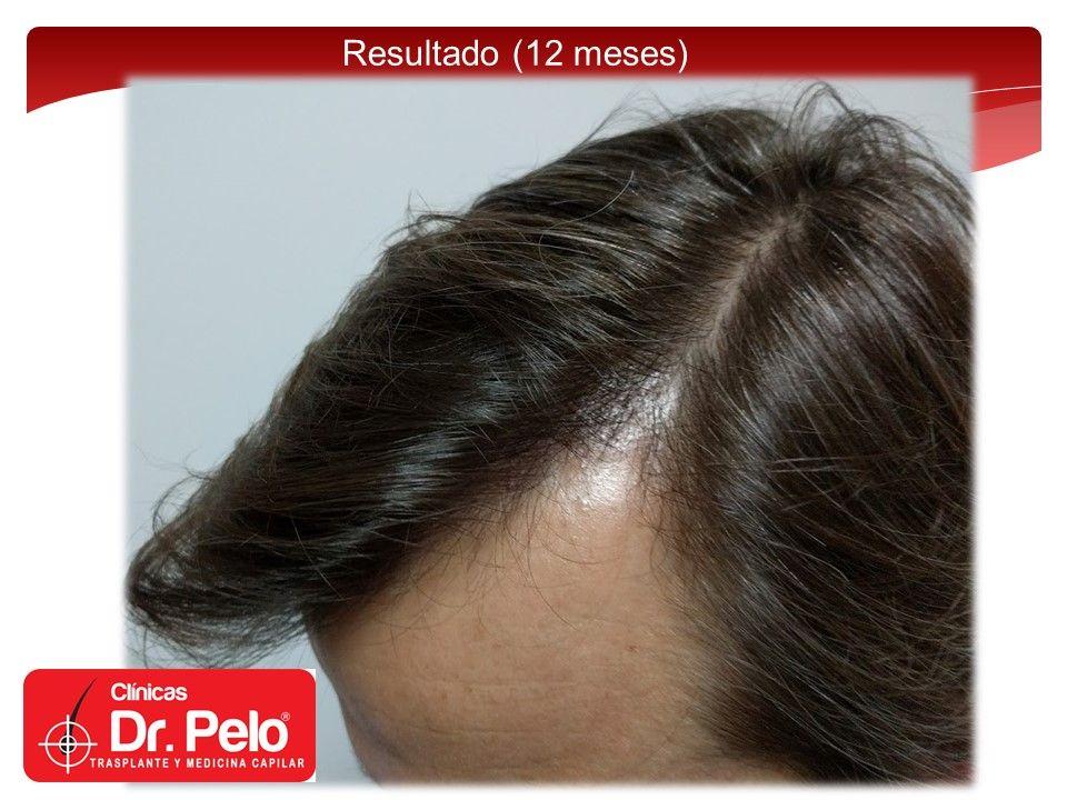 [Imagen: injerto-capilar-fue-12.jpg]