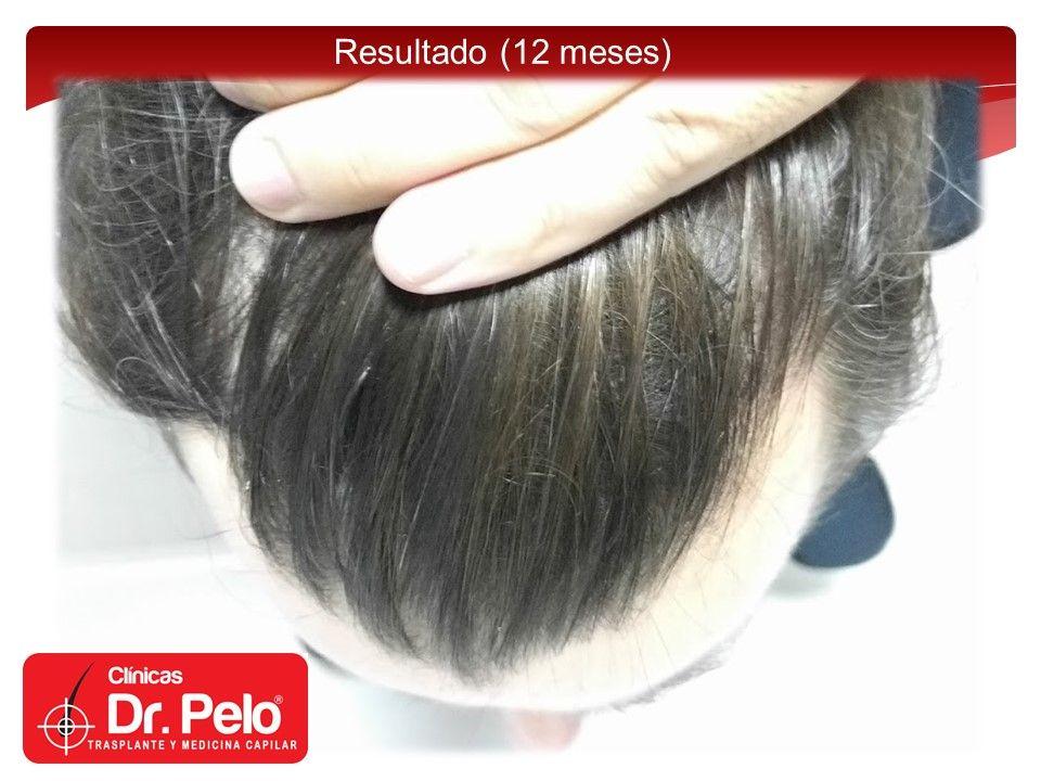 [Imagen: injerto-capilar-fue-14.jpg]