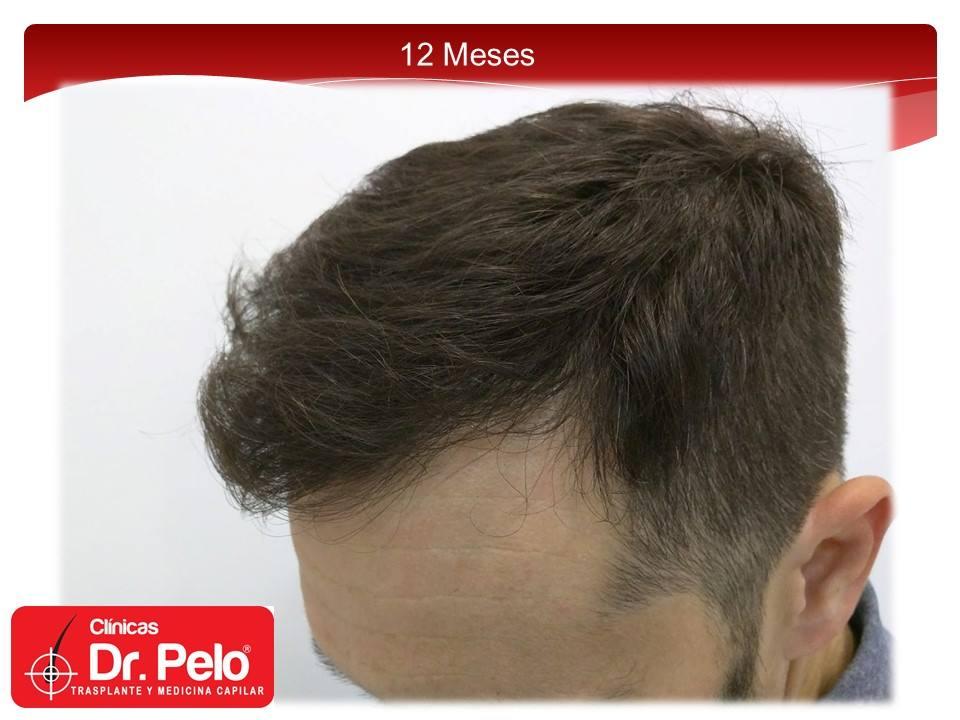 [Imagen: injerto-capilar-fue-15-2.jpg]
