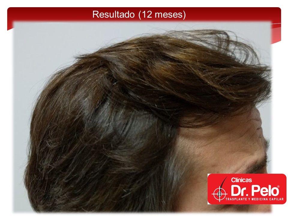 [Imagen: injerto-capilar-fue-15.jpg]