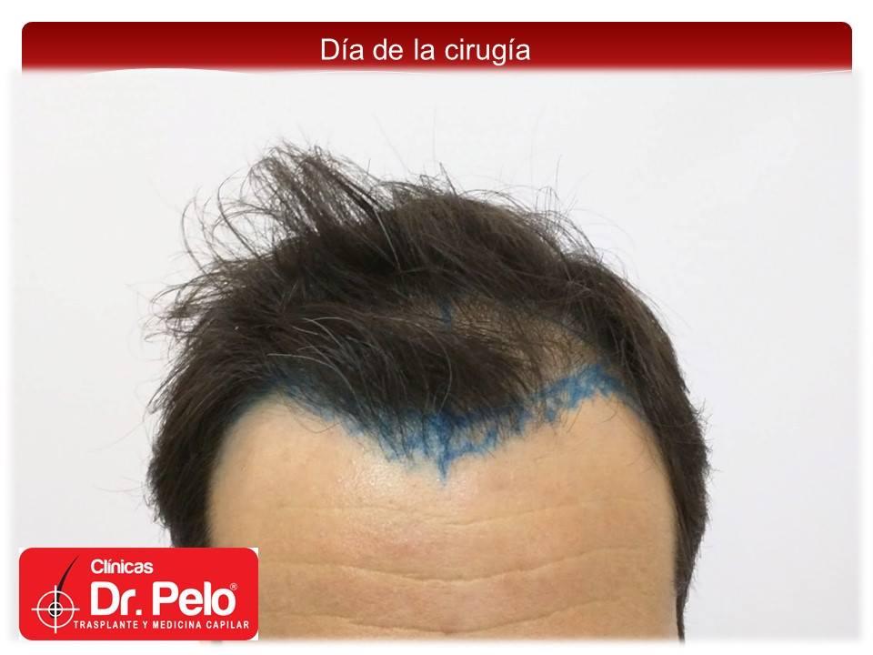 [Imagen: injerto-capilar-fue-2-2.jpg]